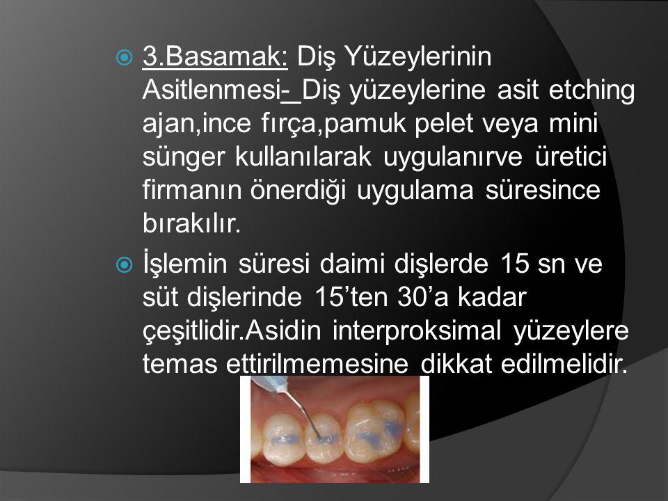  3.Basamak: Diş Yüzeylerinin Asitlenmesi- Diş yüzeylerine asit etching ajan,ince fırça,pamuk pelet veya mini sünger kullanılarak uygulanırve üretici