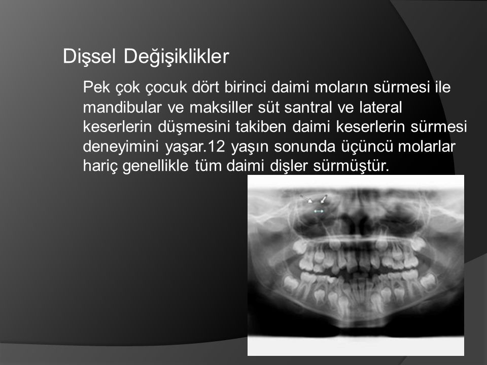 Mandibular arkta daimi birinci molarlar ve santral keserleri takiben 6 ile 7 yaşlarından 11 ile 13 yaşlarına kadar tüm dişler şu sırayla sürer; -Lateral dişler -Kaninler -Birinci ve ikinci premolarlar -İkinci molarlar Maksillada ise premolarlardan sonra ve hemen hemen aynı veya ikinci molarların sürmesinden önce süren maksiller kaninler hariç maksillada da aynı sıra ile sürer.