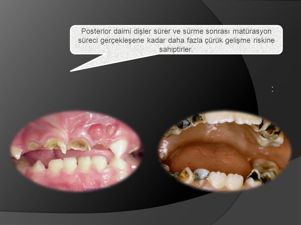 : Posterior daimi dişler sürer ve sürme sonrası matürasyon süreci gerçekleşene kadar daha fazla çürük gelişme riskine sahiptirler.