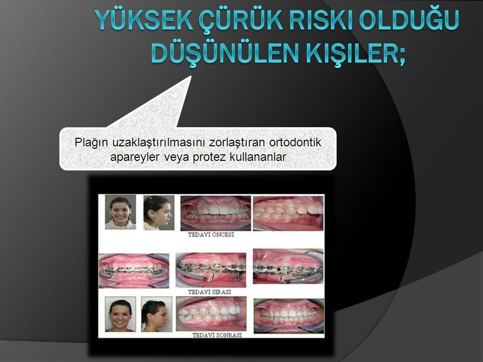 Plağın uzaklaştırılmasını zorlaştıran ortodontik apareyler veya protez kullananlar