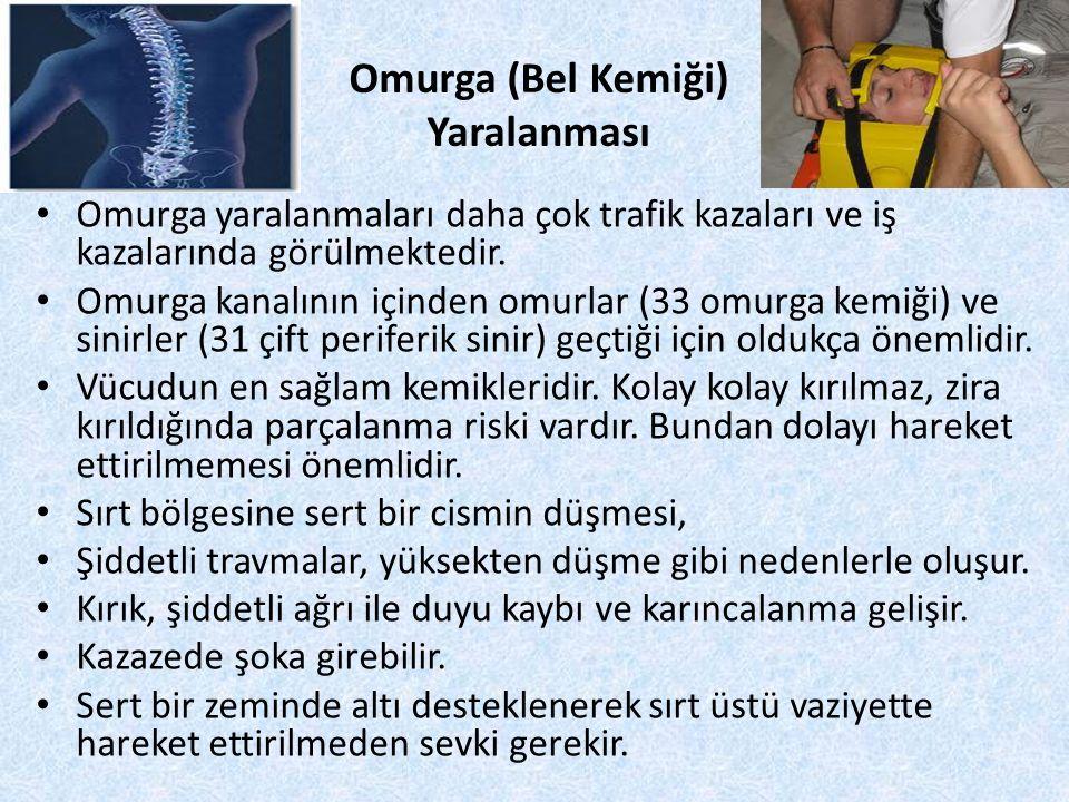 Omurga (Bel Kemiği) Yaralanması Omurga yaralanmaları daha çok trafik kazaları ve iş kazalarında görülmektedir. Omurga kanalının içinden omurlar (33 om