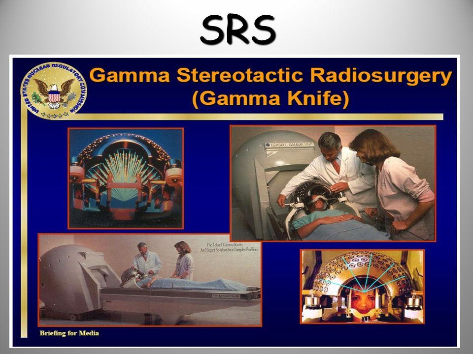 SRS Radyocerrahi ilk olarak 1951 de Dr.Leksell tarafından tanımlandı.