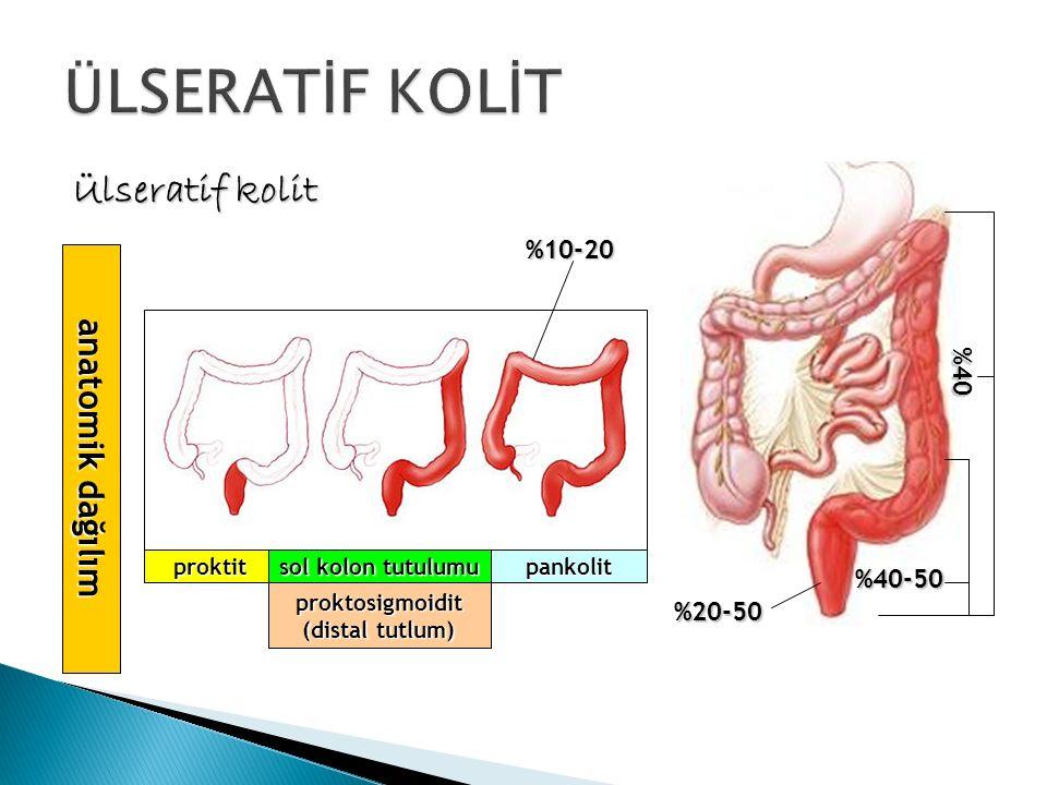 Ülseratif kolit anatomik dağılım proktitpankolit sol kolon tutulumu %20-50 %40-50 %40-50 %40 proktosigmoidit (distal tutlum) %10-20