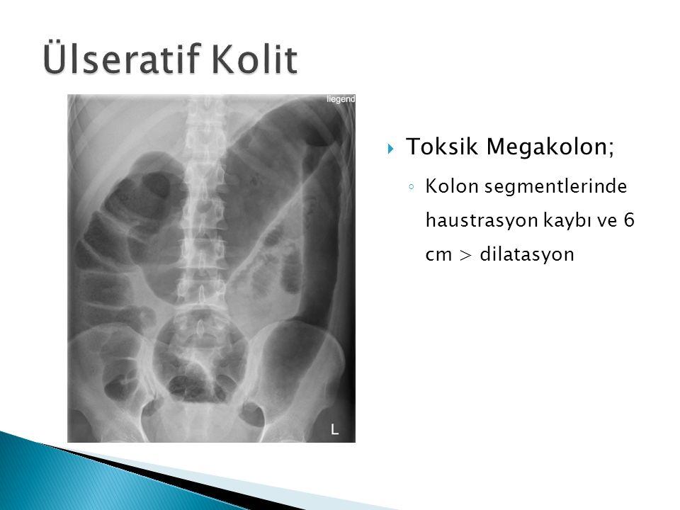  Toksik Megakolon; ◦ 6 cm > dilatasyon ◦ Barsak duvarında gaz