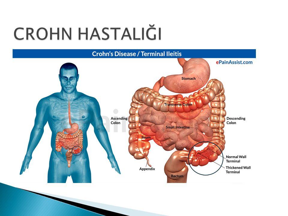 Gastrointestinal sistemi her düzeyde tutabilir  İnce barsaklar  %30-40, Kalın barsaklar  %15-25 ve her ikisi birlikte  %40-55 oranında tutulur  İleri yaşlarda izole kolon tutulumu daha sık  Terminal ileum  %90 tutulmuş