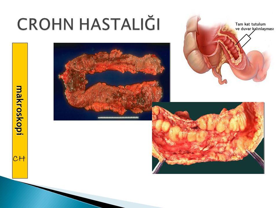 çekum ileum İBH İnce barsak kolon mide özofagus ağız İleoçekal bölge anüs rektum anatomik dağılım Crohn Hastalıgı % 5 %20 %5 %5 %35 %35