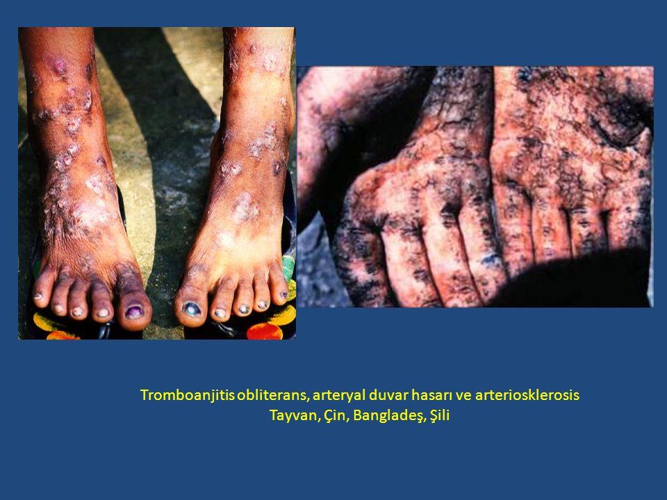 Tromboanjitis obliterans, arteryal duvar hasarı ve arteriosklerosis Tayvan, Çin, Bangladeş, Şili