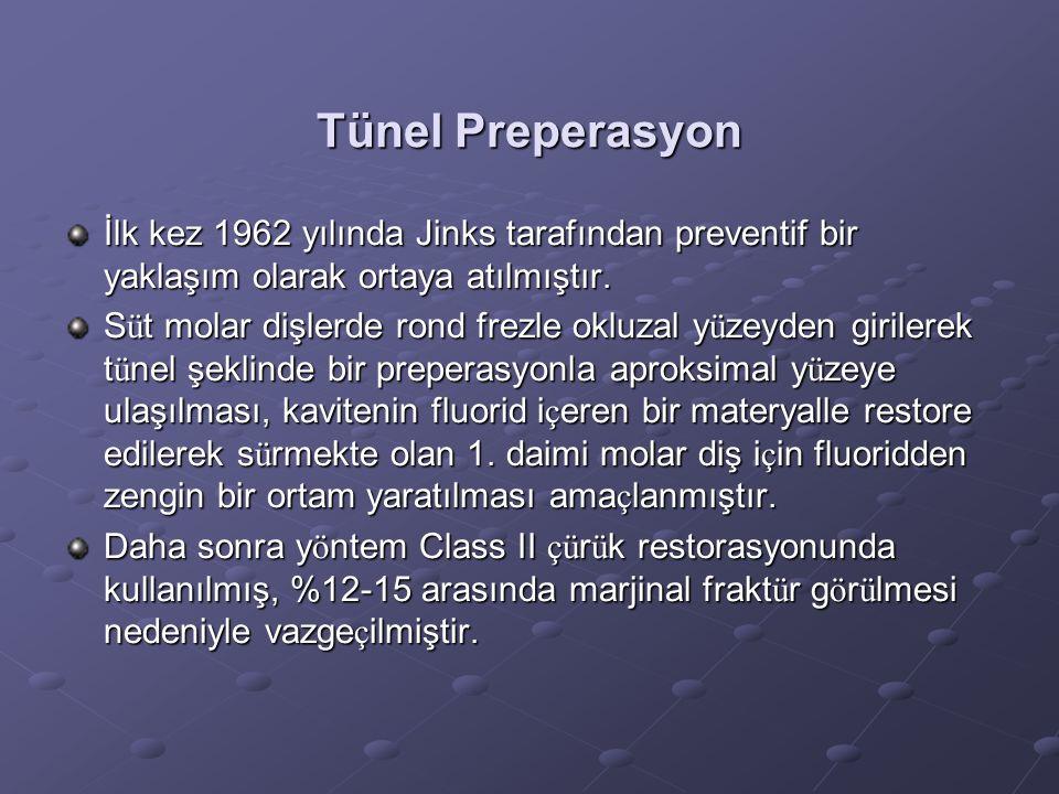 Tünel Preperasyon İlk kez 1962 yılında Jinks tarafından preventif bir yaklaşım olarak ortaya atılmıştır. S ü t molar dişlerde rond frezle okluzal y ü