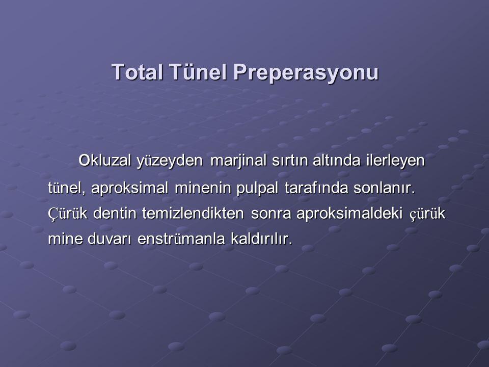 Total Tünel Preperasyonu o kluzal y ü zeyden marjinal sırtın altında ilerleyen t ü nel, aproksimal minenin pulpal tarafında sonlanır. Çü r ü k dentin