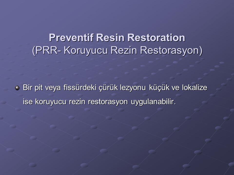 Preventif Resin Restoration (PRR- Koruyucu Rezin Restorasyon) Bir pit veya fissürdeki çürük lezyonu küçük ve lokalize ise koruyucu rezin restorasyon u