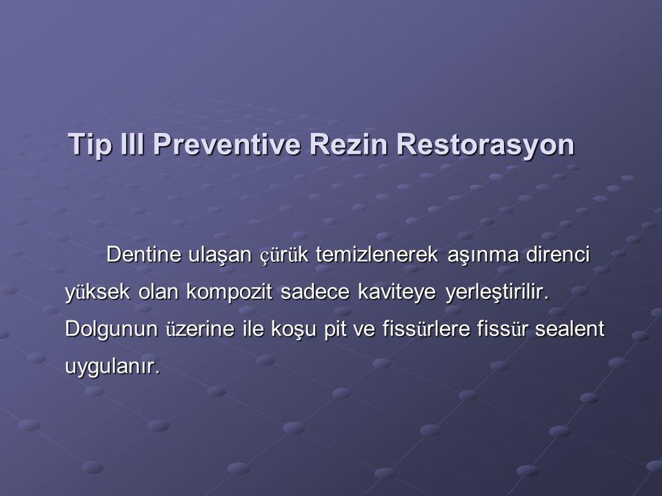 Tip III Preventive Rezin Restorasyon Dentine ulaşan çü r ü k temizlenerek aşınma direnci y ü ksek olan kompozit sadece kaviteye yerleştirilir. Dolgunu