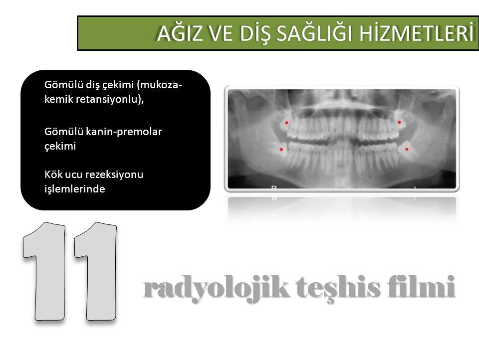 AĞIZ VE DİŞ SAĞLIĞI HİZMETLERİ radyolojik teşhis filmi radyolojik teşhis filmi Gömülü diş çekimi (mukoza- kemik retansiyonlu), Gömülü kanin-premolar çekimi Kök ucu rezeksiyonu işlemlerinde