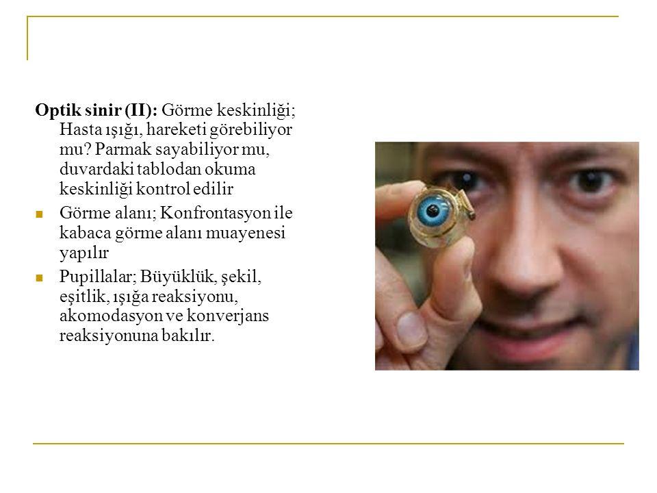 Optik sinir (II): Görme keskinliği; Hasta ışığı, hareketi görebiliyor mu? Parmak sayabiliyor mu, duvardaki tablodan okuma keskinliği kontrol edilir Gö