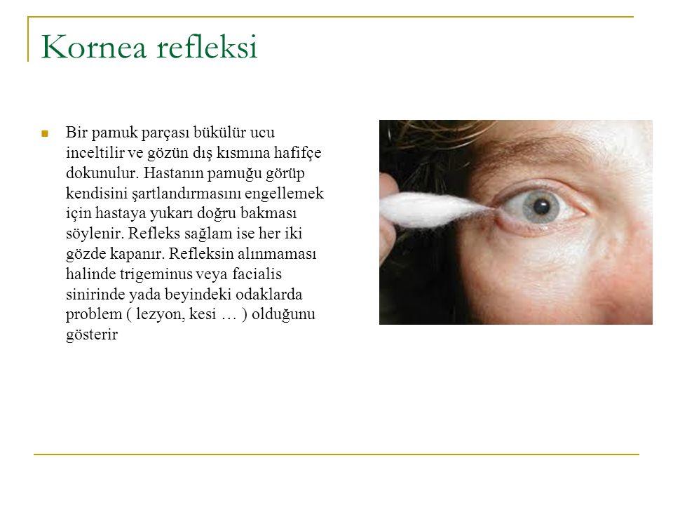 Kornea refleksi Bir pamuk parçası bükülür ucu inceltilir ve gözün dış kısmına hafifçe dokunulur. Hastanın pamuğu görüp kendisini şartlandırmasını enge