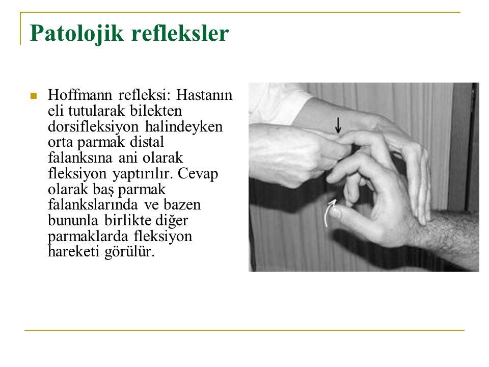 Patolojik refleksler Hoffmann refleksi: Hastanın eli tutularak bilekten dorsifleksiyon halindeyken orta parmak distal falanksına ani olarak fleksiyon