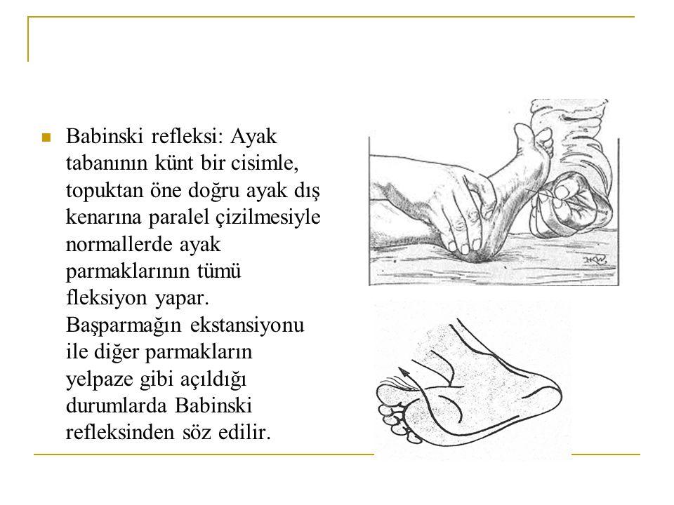 Babinski refleksi: Ayak tabanının künt bir cisimle, topuktan öne doğru ayak dış kenarına paralel çizilmesiyle normallerde ayak parmaklarının tümü flek