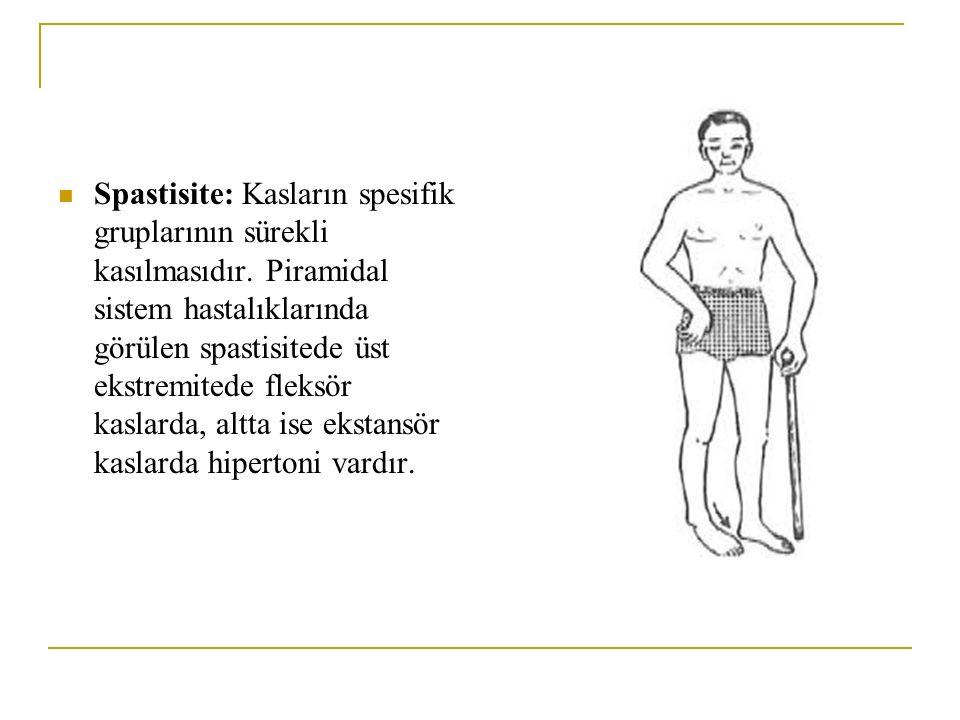 Spastisite: Kasların spesifik gruplarının sürekli kasılmasıdır. Piramidal sistem hastalıklarında görülen spastisitede üst ekstremitede fleksör kaslard