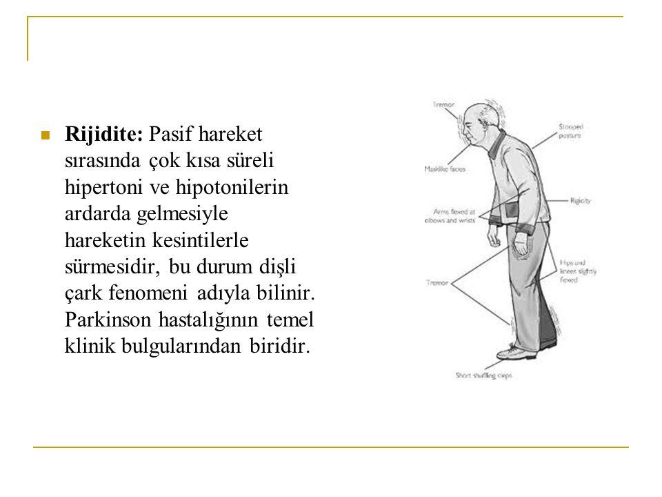 Rijidite: Pasif hareket sırasında çok kısa süreli hipertoni ve hipotonilerin ardarda gelmesiyle hareketin kesintilerle sürmesidir, bu durum dişli çark