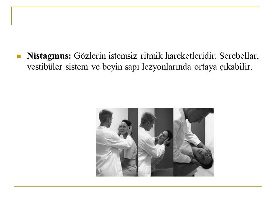 Nistagmus: Gözlerin istemsiz ritmik hareketleridir. Serebellar, vestibüler sistem ve beyin sapı lezyonlarında ortaya çıkabilir.