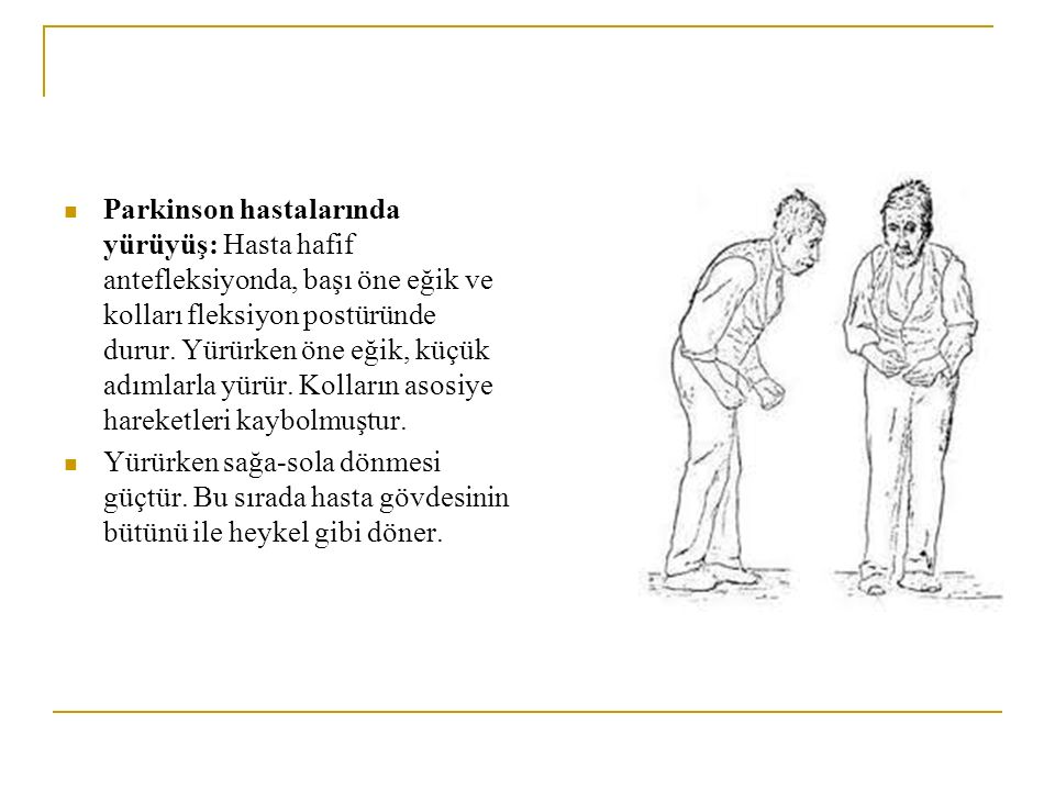 Parkinson hastalarında yürüyüş: Hasta hafif antefleksiyonda, başı öne eğik ve kolları fleksiyon postüründe durur. Yürürken öne eğik, küçük adımlarla y
