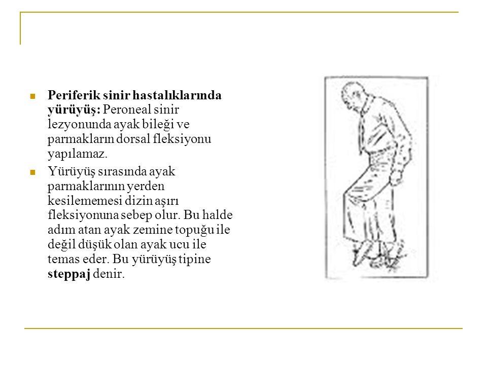 Periferik sinir hastalıklarında yürüyüş: Peroneal sinir lezyonunda ayak bileği ve parmakların dorsal fleksiyonu yapılamaz. Yürüyüş sırasında ayak parm