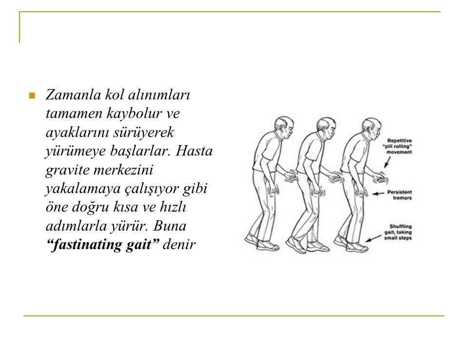 Zamanla kol alınımları tamamen kaybolur ve ayaklarını sürüyerek yürümeye başlarlar. Hasta gravite merkezini yakalamaya çalışıyor gibi öne doğru kısa v