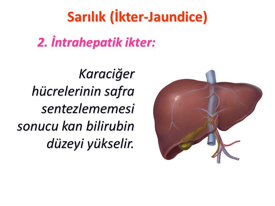Sarılık (İkter-Jaundice) Karaciğer hücrelerinin safra sentezlememesi sonucu kan bilirubin düzeyi yükselir. 2. İntrahepatik ikter: