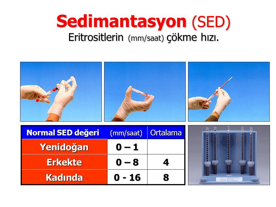 Sedimantasyon (SED) Eritrositlerin (mm/saat) çökme hızı. Normal SED değeri (mm/saat) Ortalama Yenidoğan 0 – 1 Erkekte 0 – 8 4 Kadında 0 - 16 8