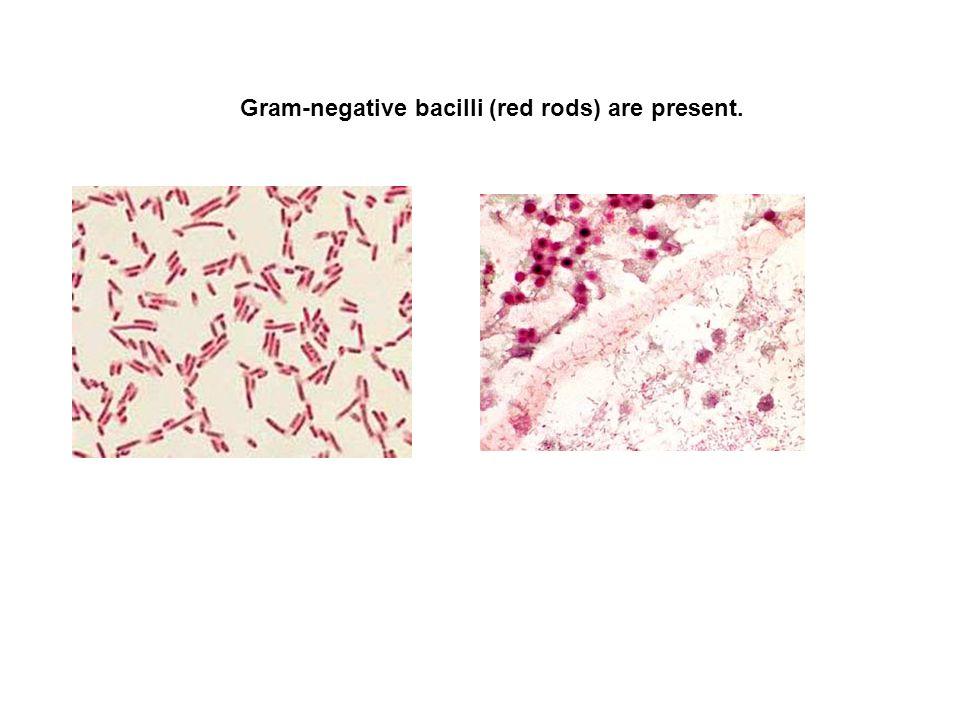 Gram-negative bacilli (red rods) are present.
