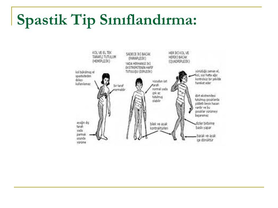 Spastik Tip Sınıflandırma:
