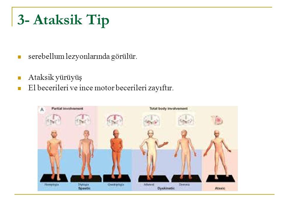 3- Ataksik Tip serebellum lezyonlarında görülür. Ataksik yürüyüş El becerileri ve ince motor becerileri zayıftır.