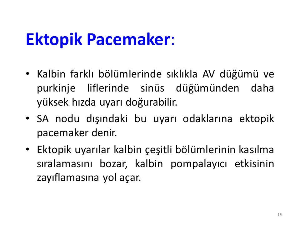 15 Ektopik Pacemaker: Kalbin farklı bölümlerinde sıklıkla AV düğümü ve purkinje liflerinde sinüs düğümünden daha yüksek hızda uyarı doğurabilir. SA no