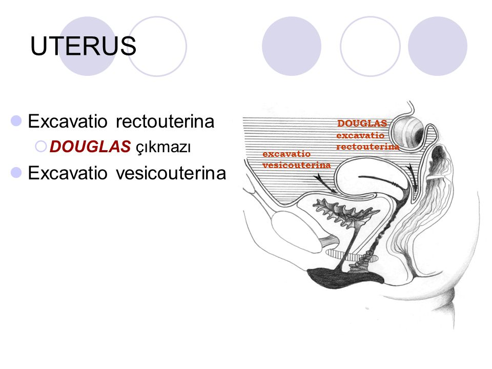 UTERUS Excavatio rectouterina  DOUGLAS çıkmazı Excavatio vesicouterina excavatio vesicouterina excavatio rectouterina DOUGLAS