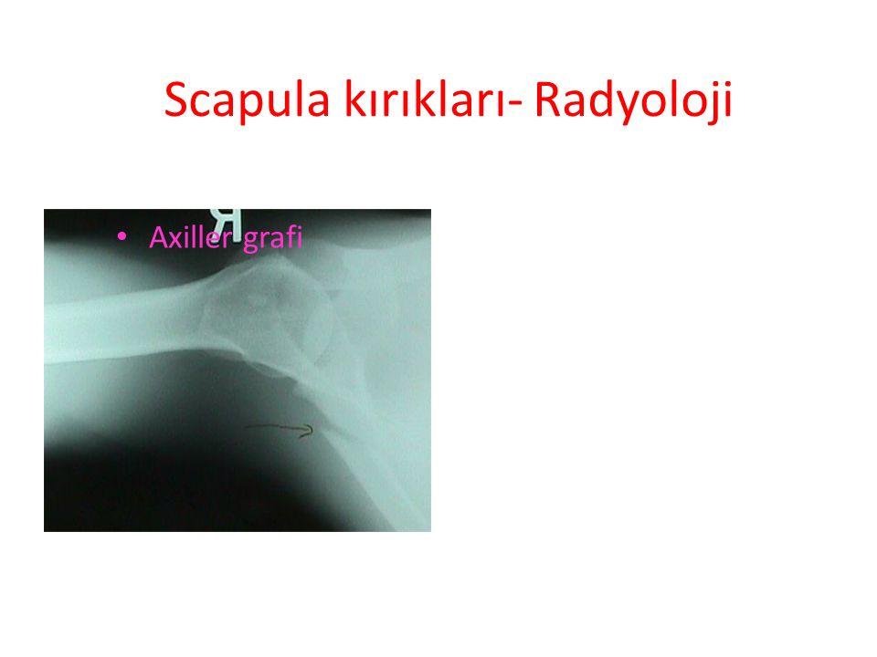 Scapula kırıkları- Radyoloji Axiller grafi