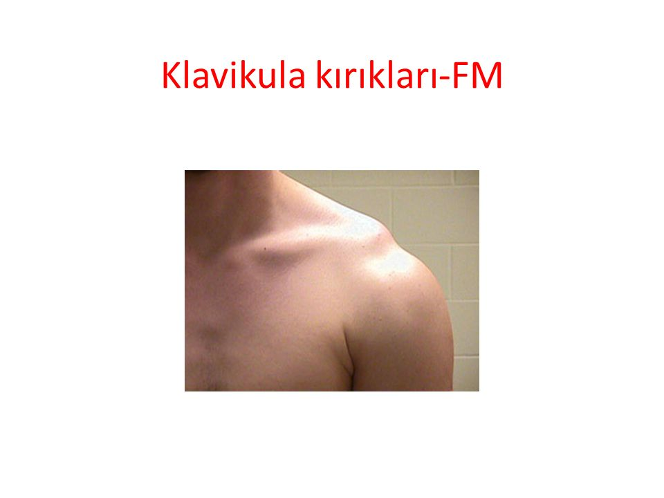 Klavikula kırıkları- Tedavi CERRAHİ – distal 1/3 kırıklar-tip 2 (korakoakromial lig yırtığı) – Ciddi deplase – Nonunion – Nörovasküler yaralanma – Açık kırık
