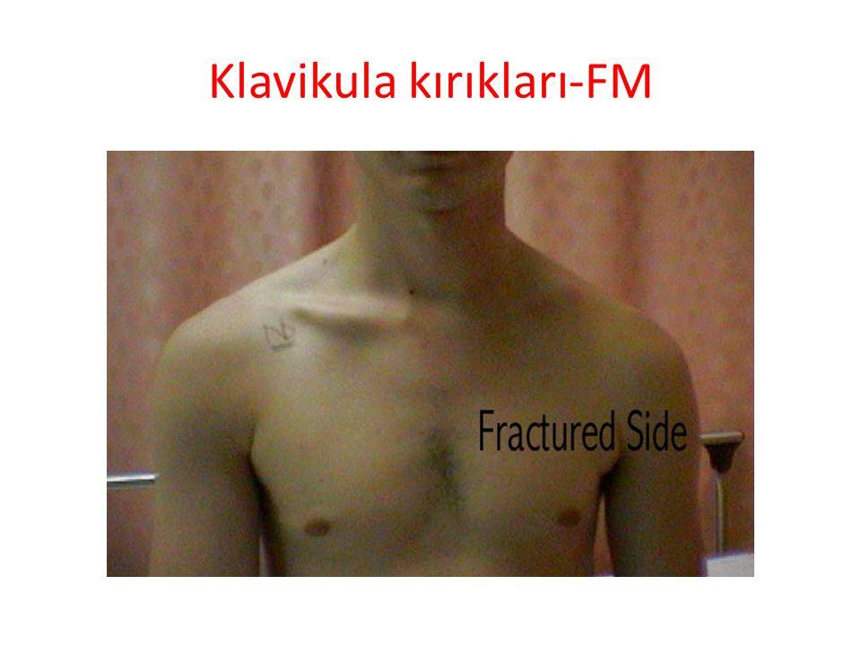 Klavikula kırıkları-Radyoloji Antero-posterior omuz grafisi BT