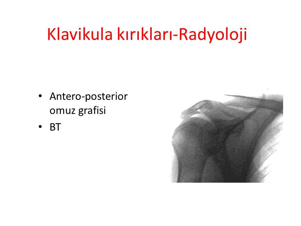 SCAPULA KIRIKLARI Tüm kırıkların %1 Omuz kuşağı yaralanmalarının %5 30-40 yaşlarında ve erkeklerde Yüksek enerjili injury – Motorlu araç kazaları – Yüksekden düşme – Crush injury