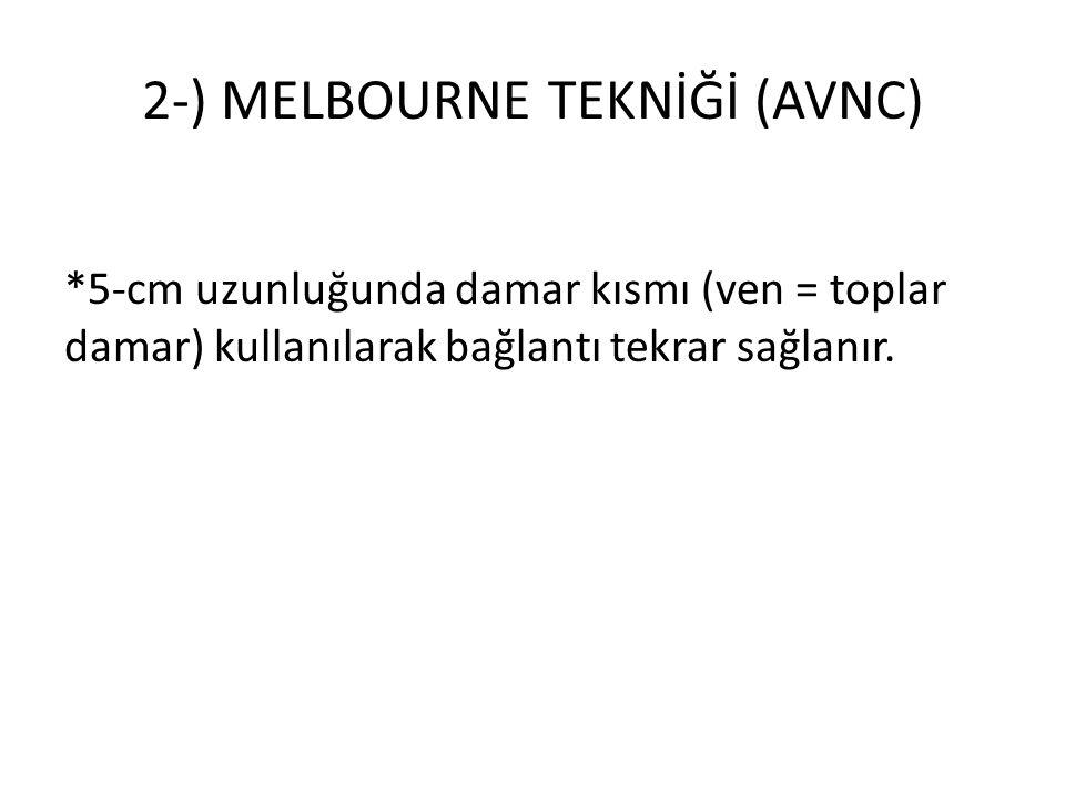 2-) MELBOURNE TEKNİĞİ (AVNC) *5-cm uzunluğunda damar kısmı (ven = toplar damar) kullanılarak bağlantı tekrar sağlanır.