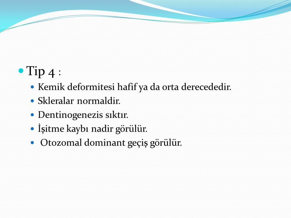 Tip 4 : Kemik deformitesi hafif ya da orta derecededir. Skleralar normaldir. Dentinogenezis sıktır. İşitme kaybı nadir görülür. Otozomal dominant geçi