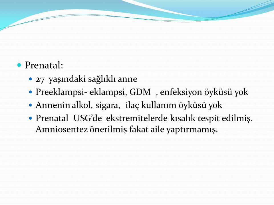 Prenatal: 27 yaşındaki sağlıklı anne Preeklampsi- eklampsi, GDM, enfeksiyon öyküsü yok Annenin alkol, sigara, ilaç kullanım öyküsü yok Prenatal USG'de