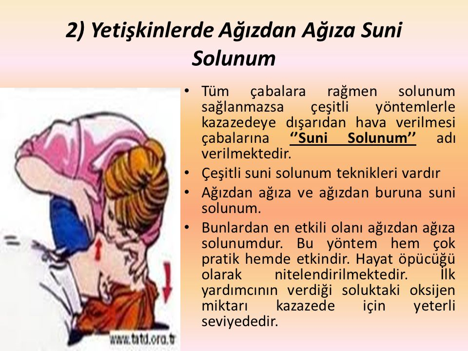 2) Yetişkinlerde Ağızdan Ağıza Suni Solunum Tüm çabalara rağmen solunum sağlanmazsa çeşitli yöntemlerle kazazedeye dışarıdan hava verilmesi çabalarına