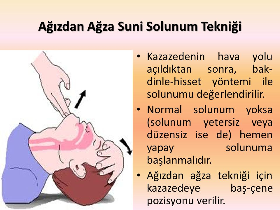 Ağızdan Ağza Suni Solunum Tekniği Kazazedenin hava yolu açıldıktan sonra, bak- dinle-hisset yöntemi ile solunumu değerlendirilir. Normal solunum yoksa