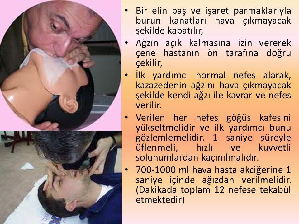 Bir elin baş ve işaret parmaklarıyla burun kanatları hava çıkmayacak şekilde kapatılır, Ağzın açık kalmasına izin vererek çene hastanın ön tarafına do