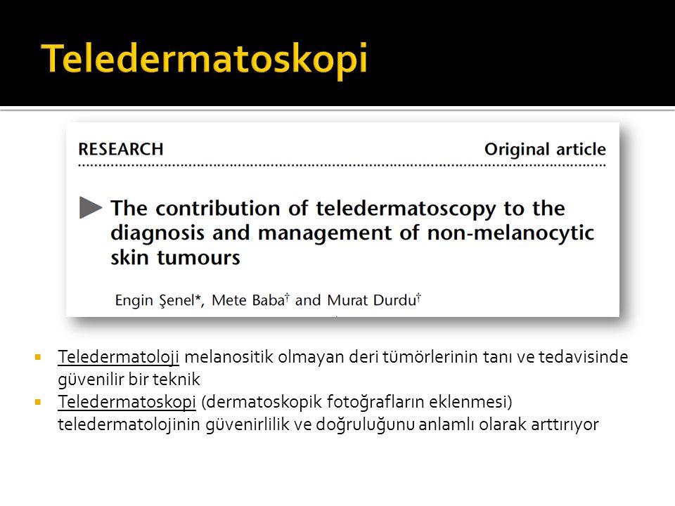  Teledermatoloji melanositik olmayan deri tümörlerinin tanı ve tedavisinde güvenilir bir teknik  Teledermatoskopi (dermatoskopik fotoğrafların eklen