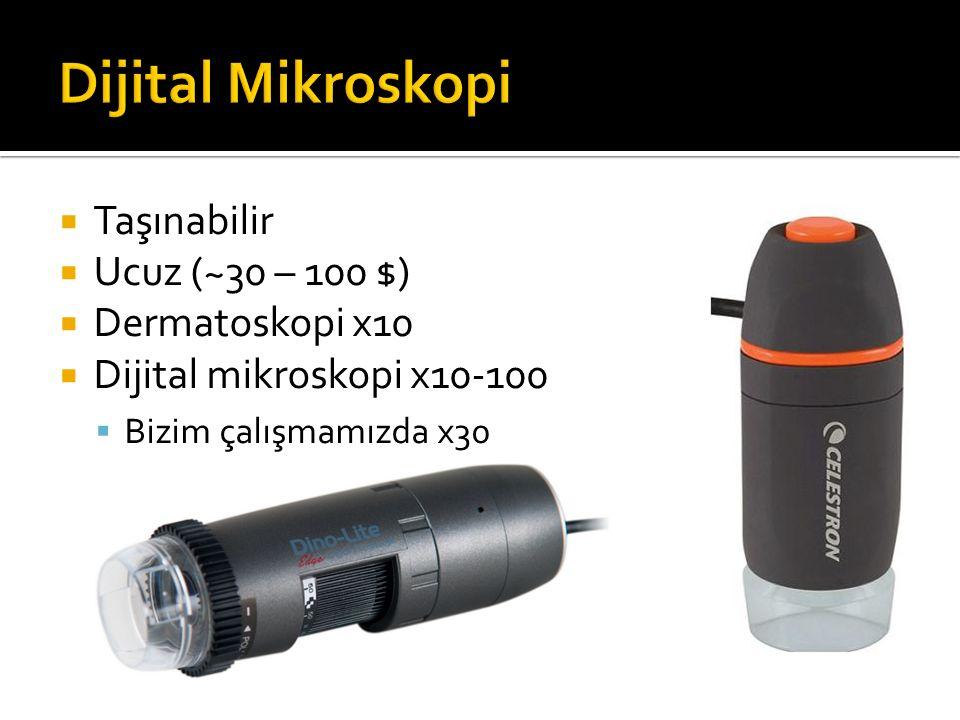  Taşınabilir  Ucuz (~30 – 100 $)  Dermatoskopi x10  Dijital mikroskopi x10-100  Bizim çalışmamızda x30