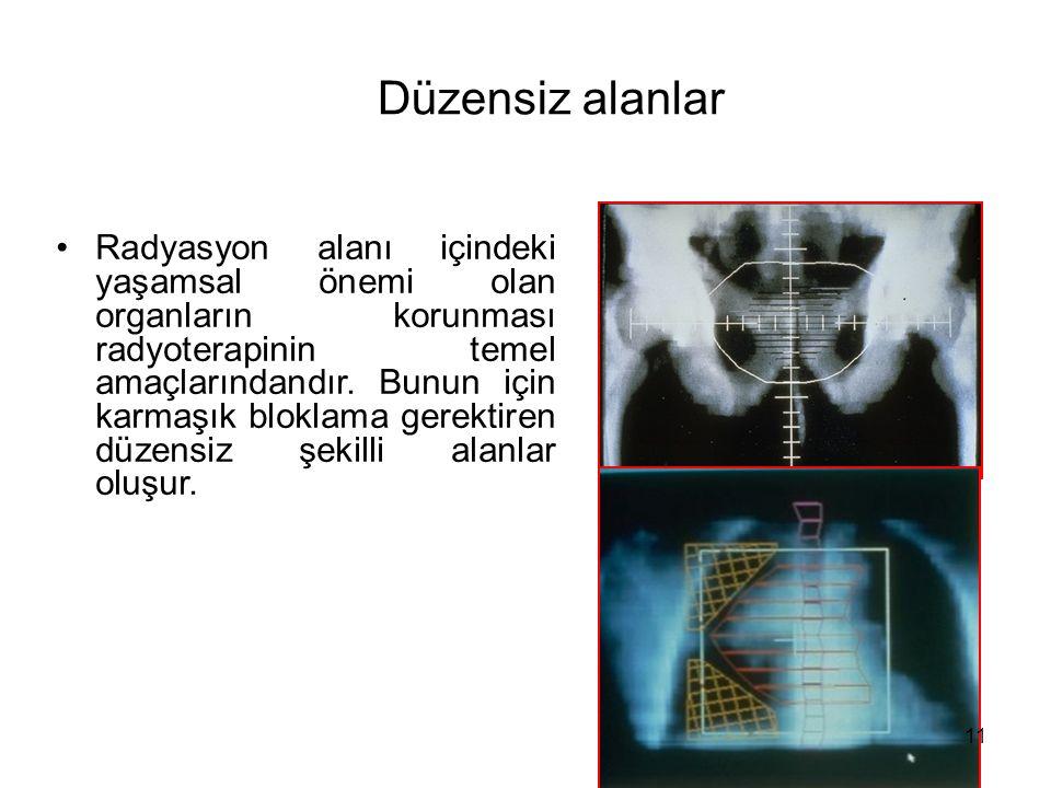 Düzensiz alanlar Radyasyon alanı içindeki yaşamsal önemi olan organların korunması radyoterapinin temel amaçlarındandır. Bunun için karmaşık bloklama