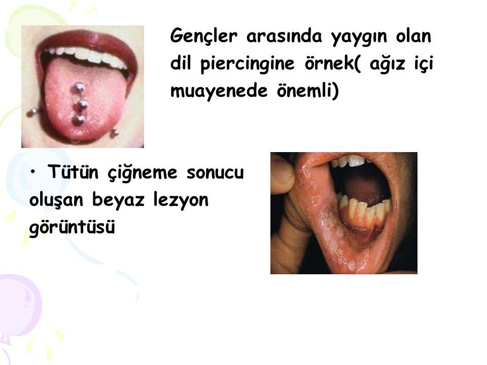 Gençler arasında yaygın olan dil piercingine örnek( ağız içi muayenede önemli) Tütün çiğneme sonucu oluşan beyaz lezyon görüntüsü