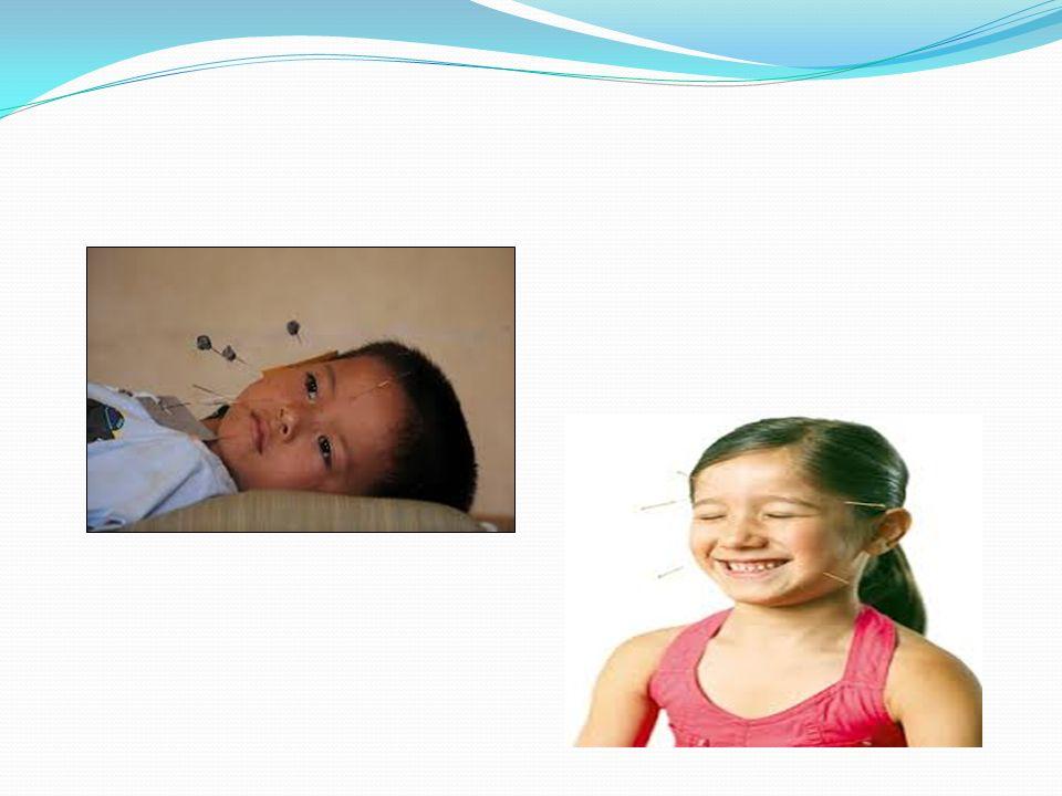 Akupunktur vücut yüzeyinde belirli yerlerde tanımlanmış özel noktaların uyarılması ile gerçekleşen bir tedavi metodudur.