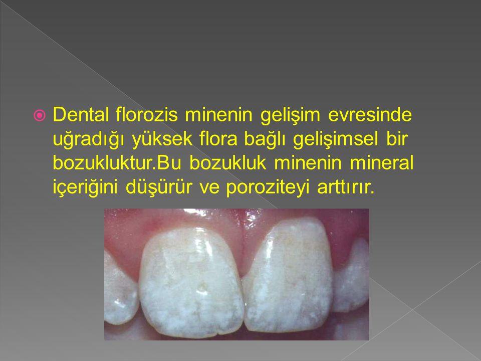  Dental florozis minenin gelişim evresinde uğradığı yüksek flora bağlı gelişimsel bir bozukluktur.Bu bozukluk minenin mineral içeriğini düşürür ve po