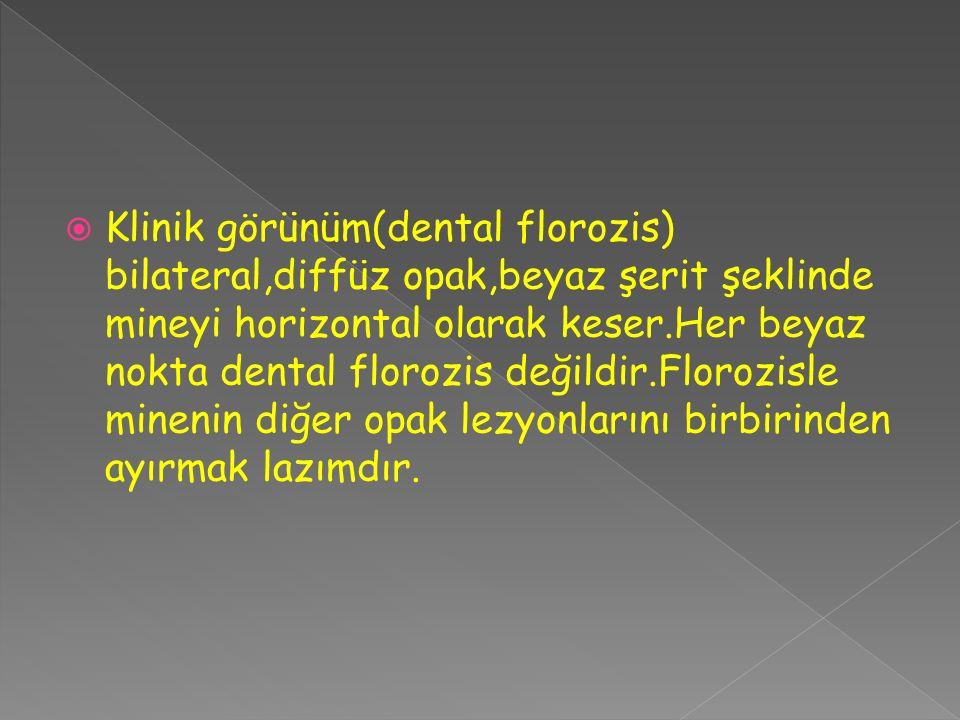  Klinik görünüm(dental florozis) bilateral,diffüz opak,beyaz şerit şeklinde mineyi horizontal olarak keser.Her beyaz nokta dental florozis değildir.F